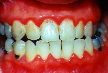 Periodontal Disease Pictures